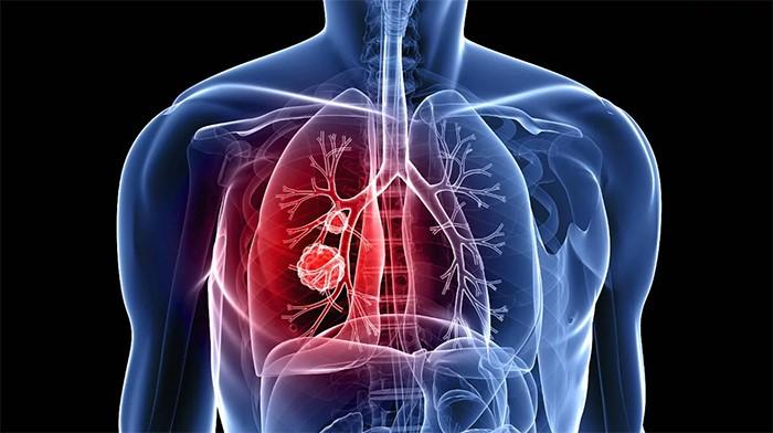 Identificada una posible diana para tratar el cáncer de pulmón