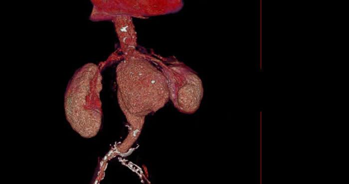 Webinar Diagnóstico por Angiotomografía de la Patología de Aorta