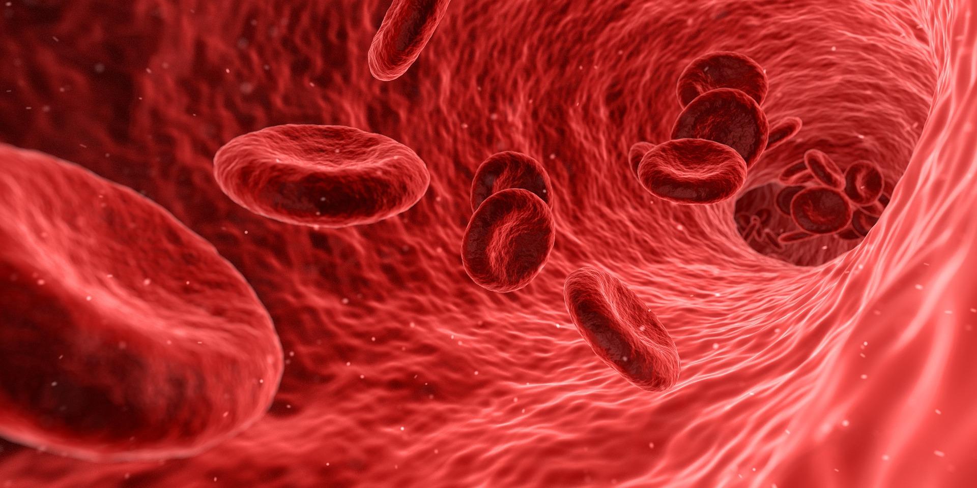 Hematólogos se actualizan sobre síndromes mieloproliferativos crónicos