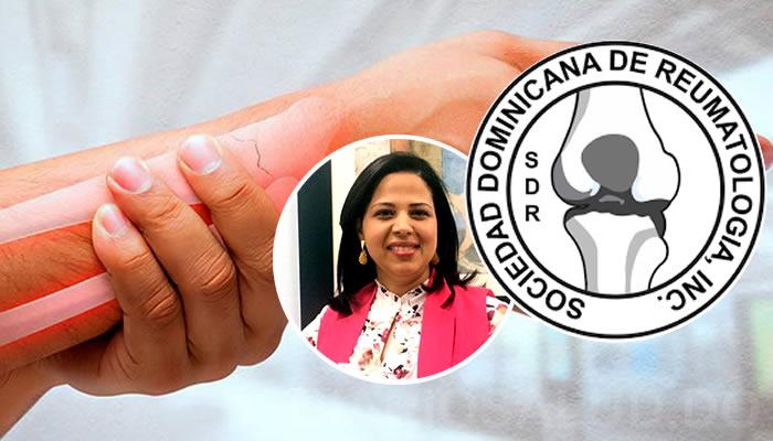Especialista asegura de 2 a 12 % de pacientes con lupus debutan con enfermedad neurológica
