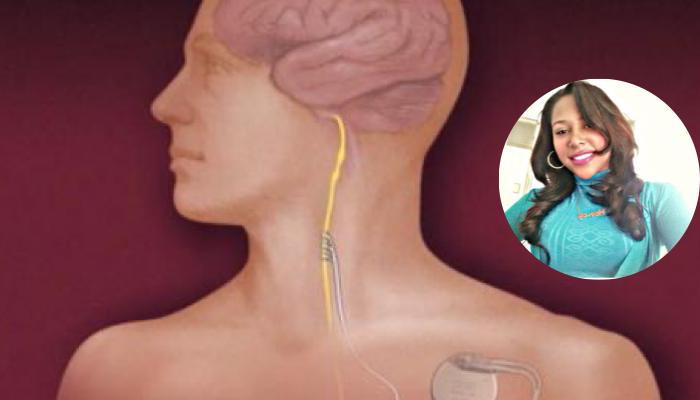Control de crisis epilépticas a través de la estimulación del nervio vago