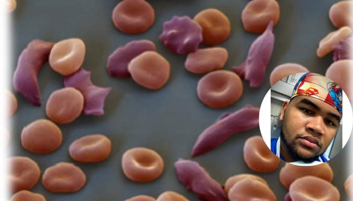 Hidroxiurea y anemia falciforme