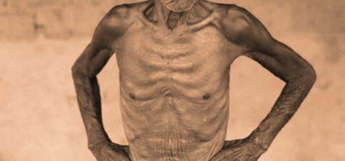 SODONEP discute sobre desnutrición en pacientes geriátricos