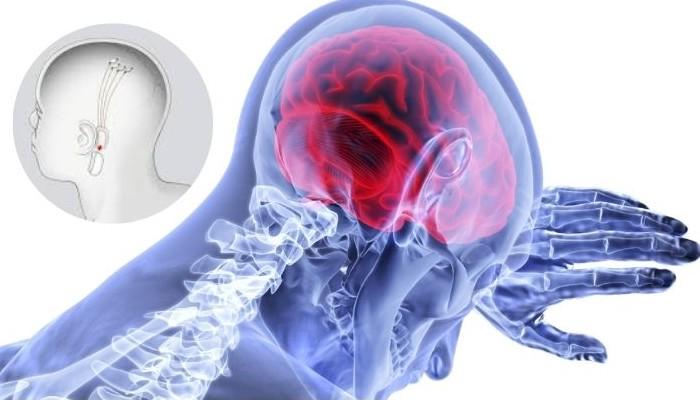 El chip N1 de Elon Musk, ¿prometedor para tratar enfermedades neurológicas?