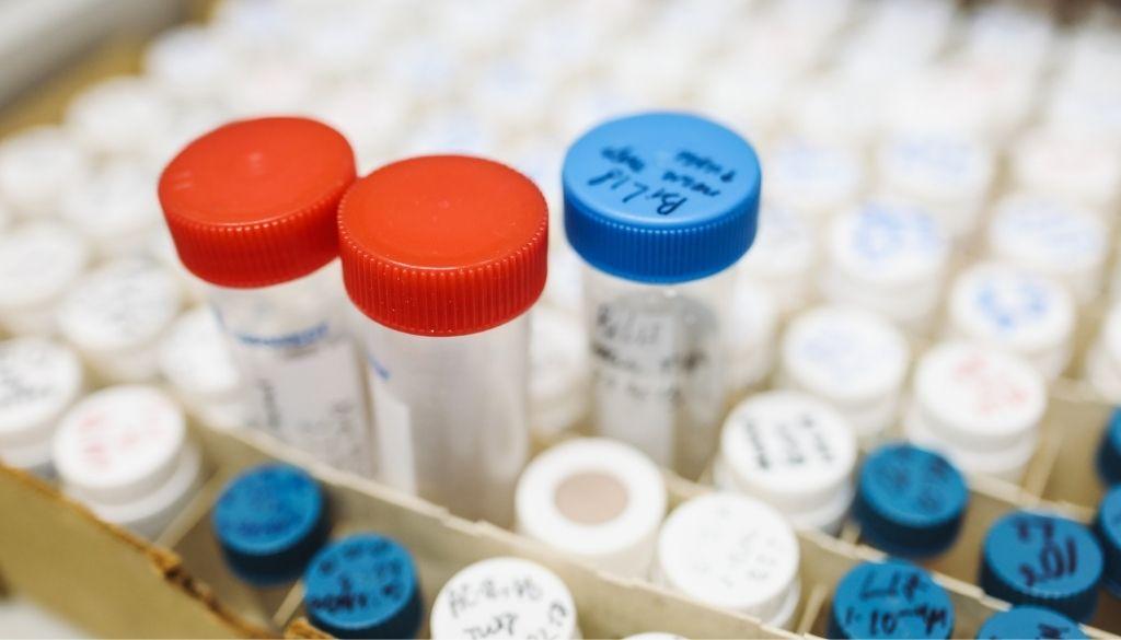 Advierten también se debe incluir  Hepatitis B en catálogo SS