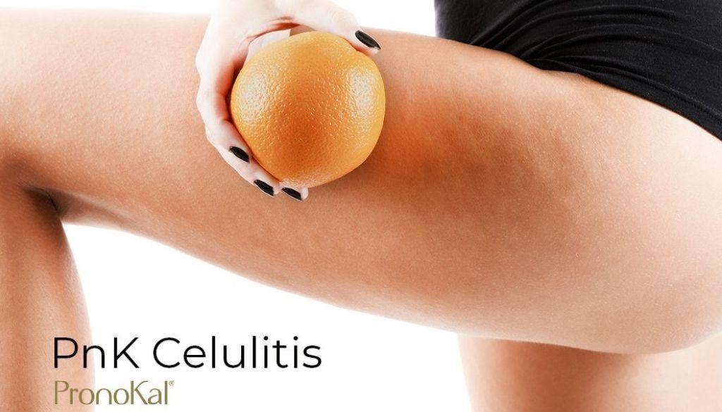 Presentan programa para combatir celulitis y flacidez