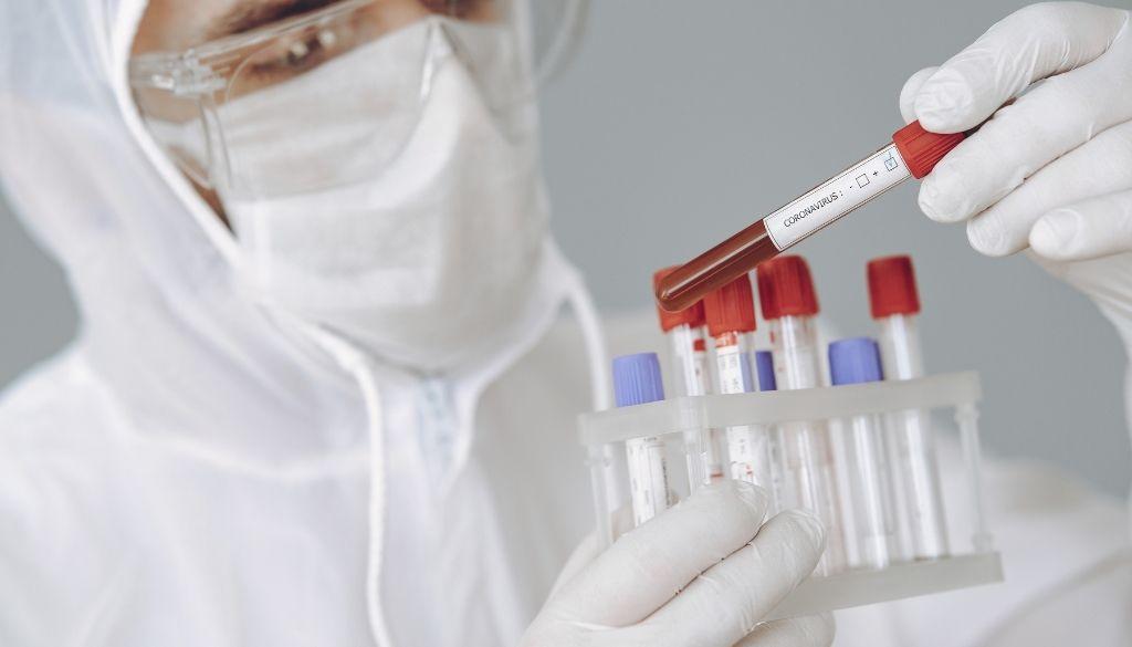 Salud Pública reporta  601 nuevos casos de Covid-19 y cinco fallecimientos