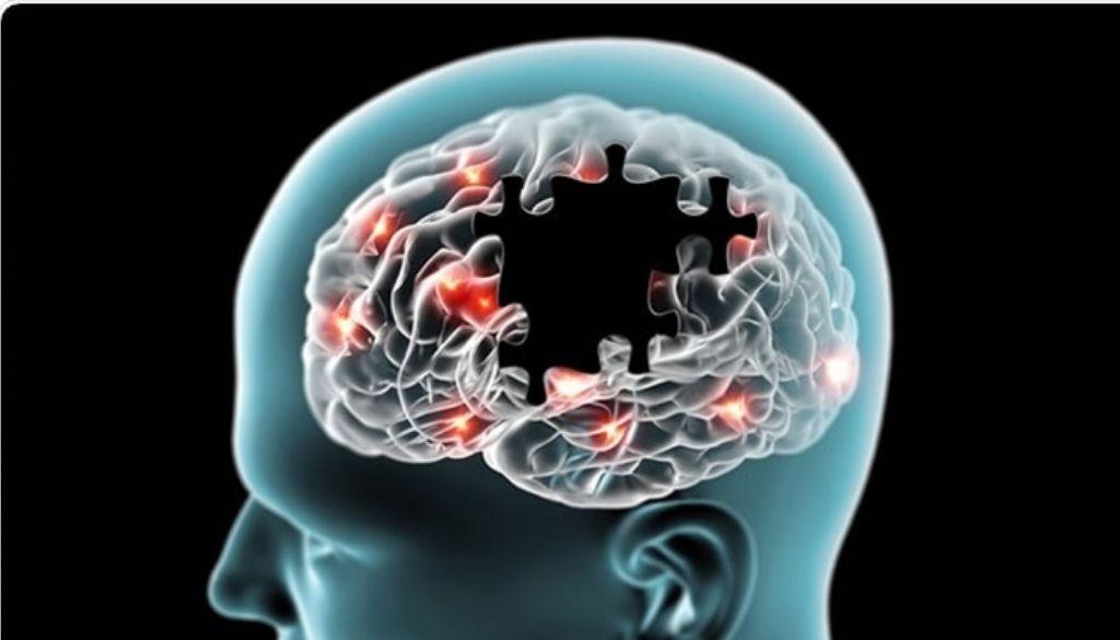 Reducen las moléculas que matan las neuronas en ratones con alzhéimer avanzado