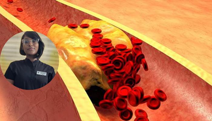 El arte del conocimiento y la prevención ante la enfermedad silente, hipercolesterolemia
