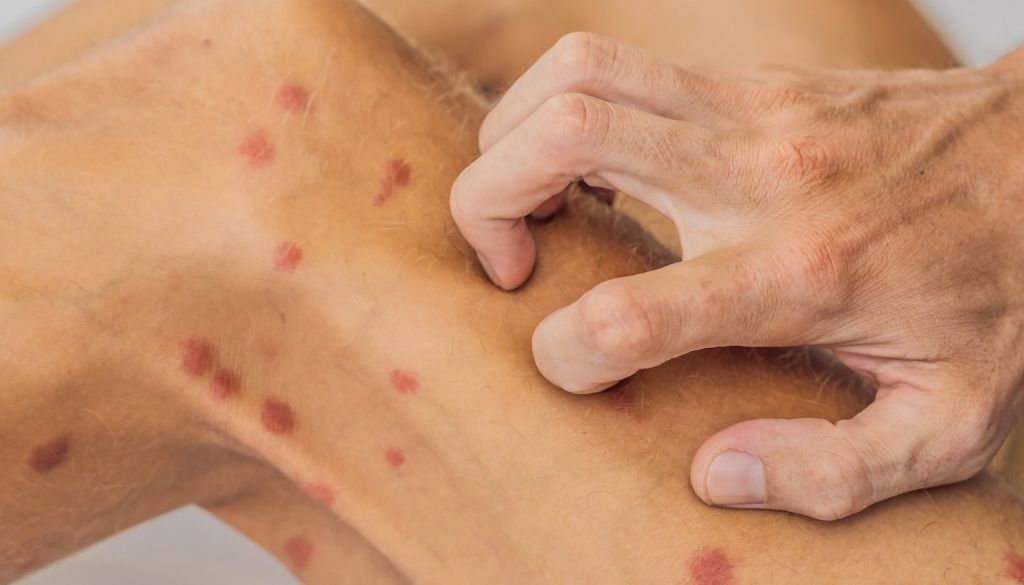Psoriasis: el metotrexato aumenta el riesgo de complicación hepática grave