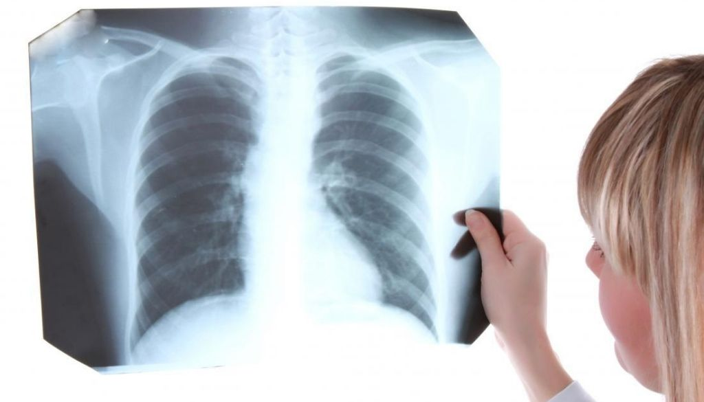 OMS asegura atención para tuberculosis disminuyó 21% durante la pandemia
