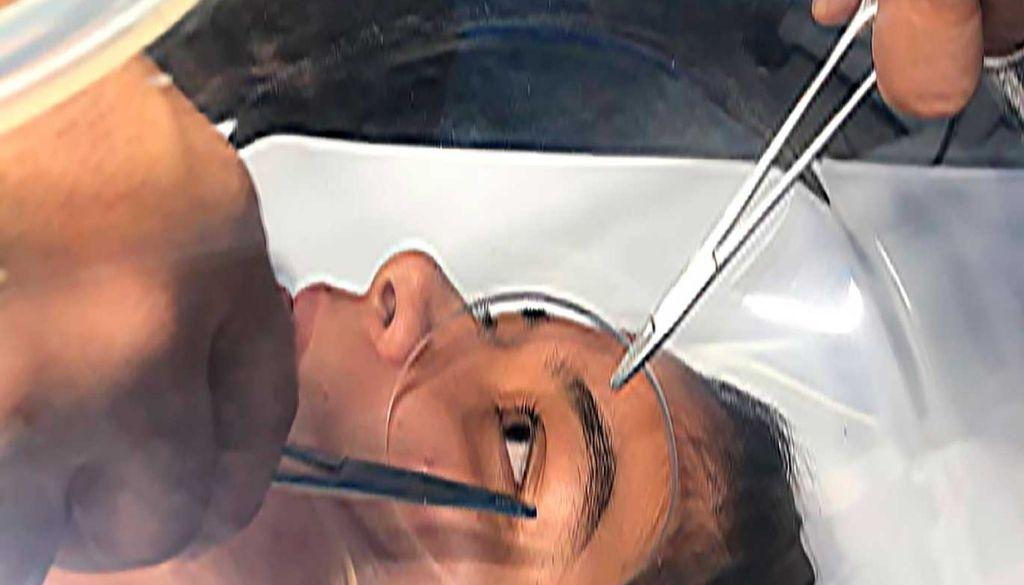 Patentan dispositivo oftalmológico portátil permite procedimientos en ambiente estéril