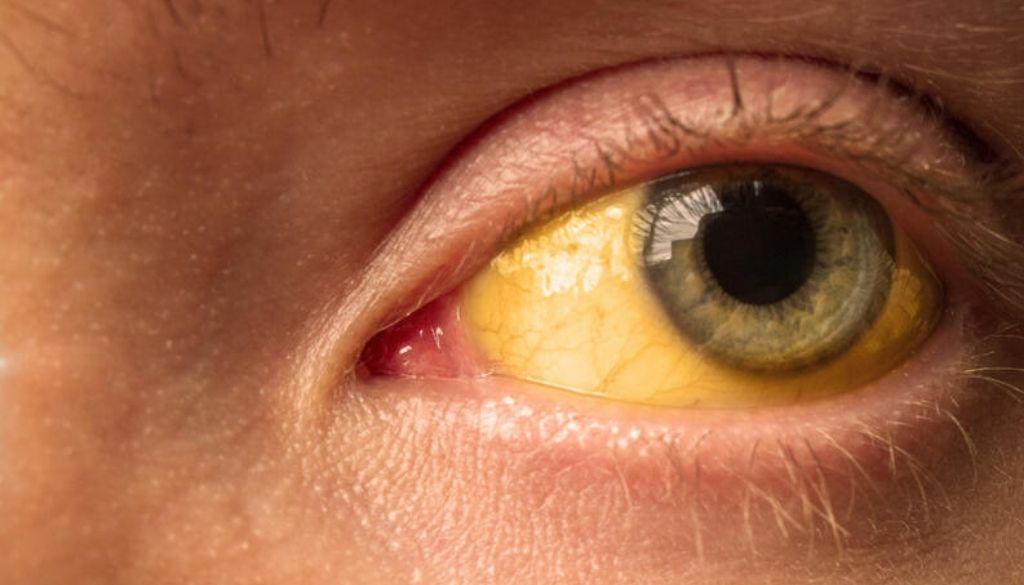 Logran predecir  anemia mediante imágenes tomadas con smartphone