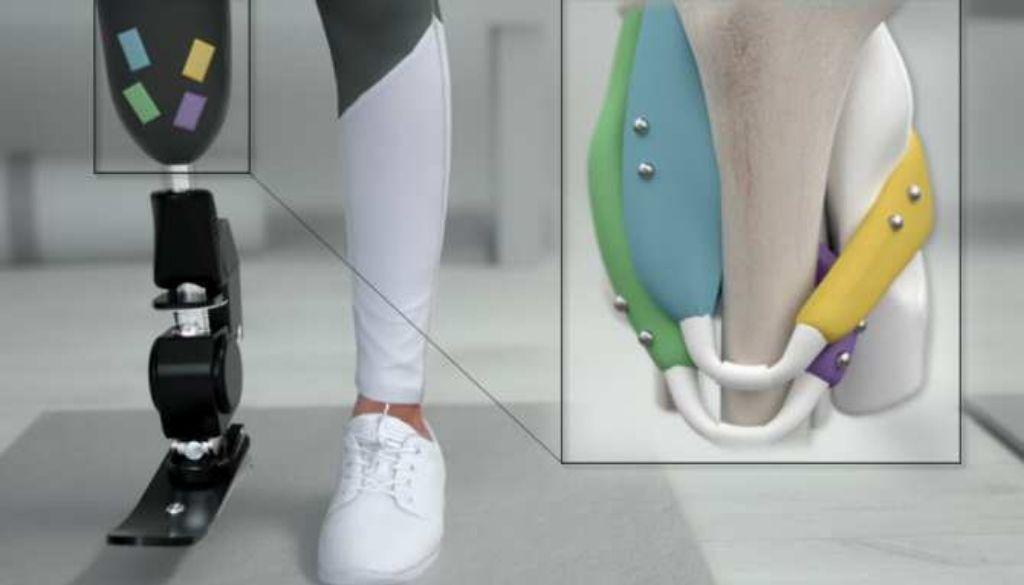 Magnetomicrometría, ¿la clave hacia un control óptimo de prótesis robóticas?