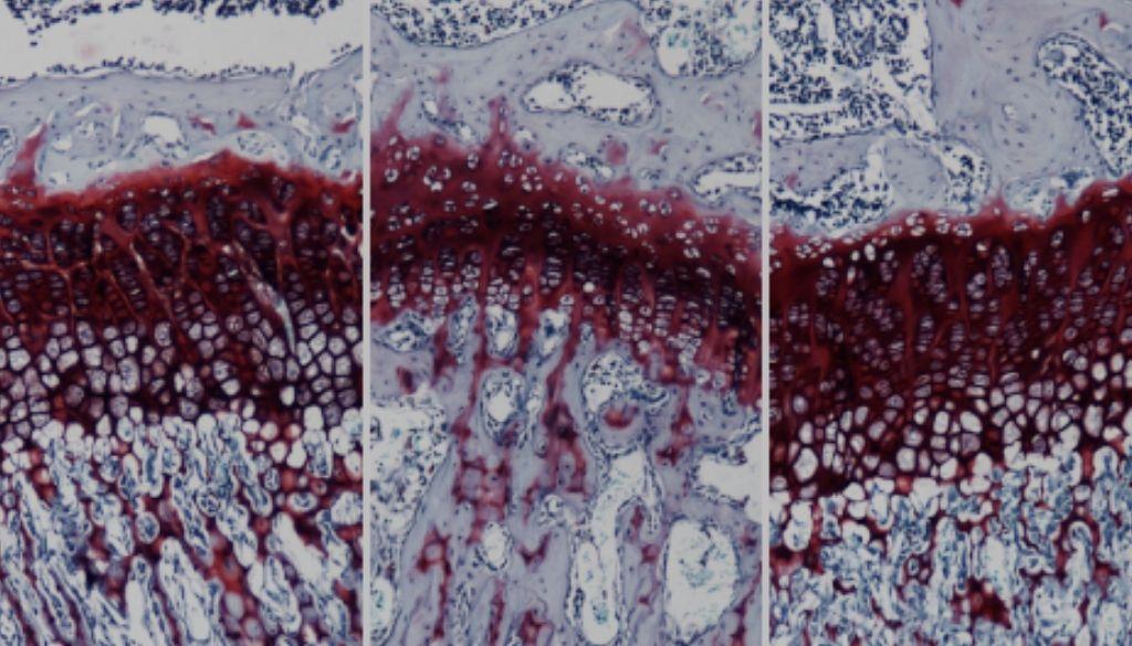 Desarrollan terapia génica podría curar enfermedad de Morquio A
